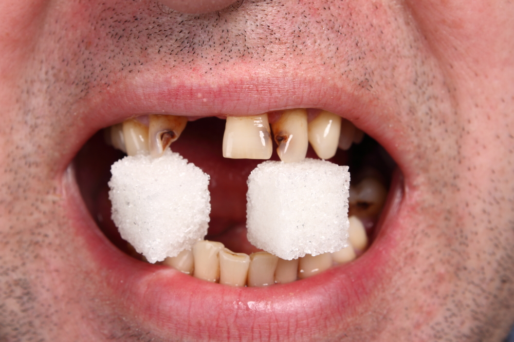 how to fix a broken tooth veneer at home